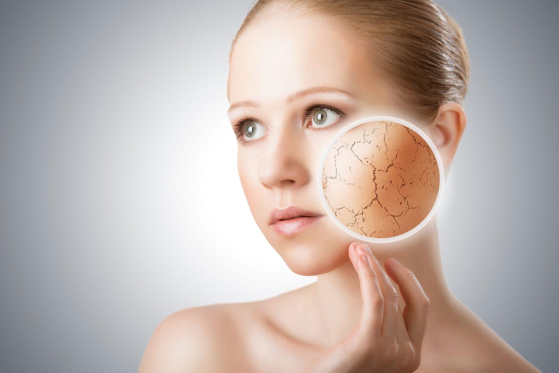 Trockene Haut –  wie soll sie gepflegt werden? Meine Vorschläge